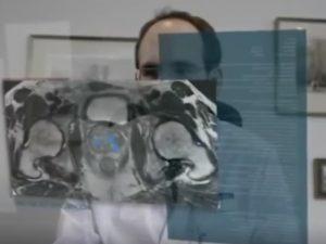 Ο Δρ Ανδρέας Ανδρέου μιλά για την βιοψία Fusion