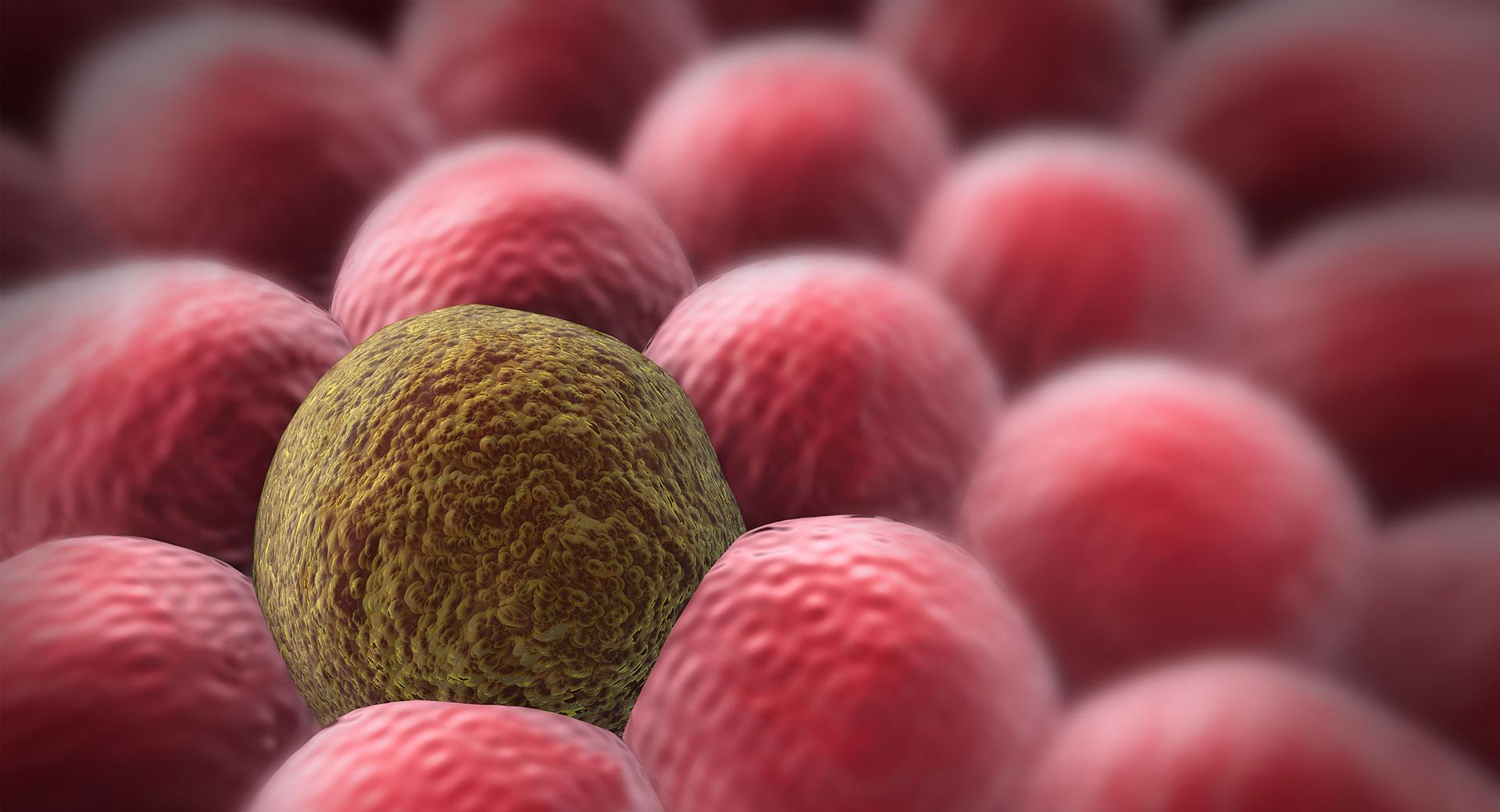 Καρκίνος πέους