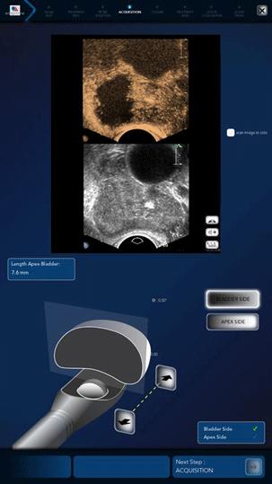 Robotic HIFU Focal one. Εντοπισμένη θεραπεία για τον καρκίνο του προστάτη