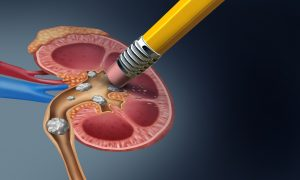 Λιθίαση νεφρού